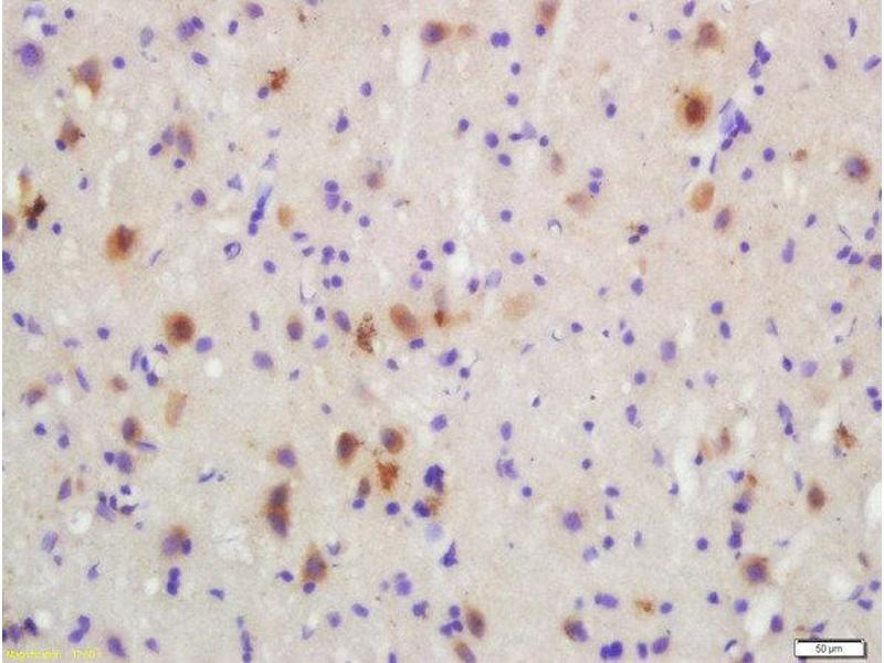 Immunohistochemistry (Paraffin-embedded Sections) (IHC (p)) image for anti-MAP2K3 antibody (Mitogen-Activated Protein Kinase Kinase 3) (pSer207) (ABIN2177687)