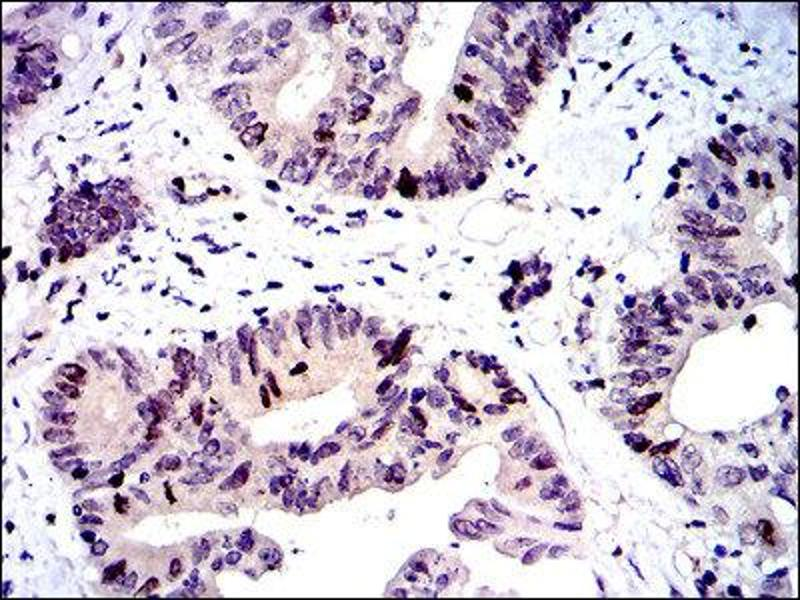 Immunohistochemistry (IHC) image for anti-BIRC5 antibody (Baculoviral IAP Repeat-Containing 5) (ABIN1845166)