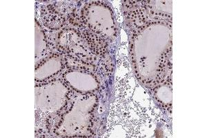 Immunohistochemistry (IHC) image for anti-Nipped-B Homolog (Drosophila) (NIPBL) antibody (ABIN4339767)