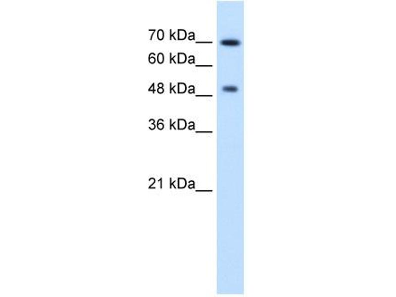 Western Blotting (WB) image for anti-RAD23 Homolog A (S. Cerevisiae) (RAD23A) (N-Term) antibody (ABIN310301)