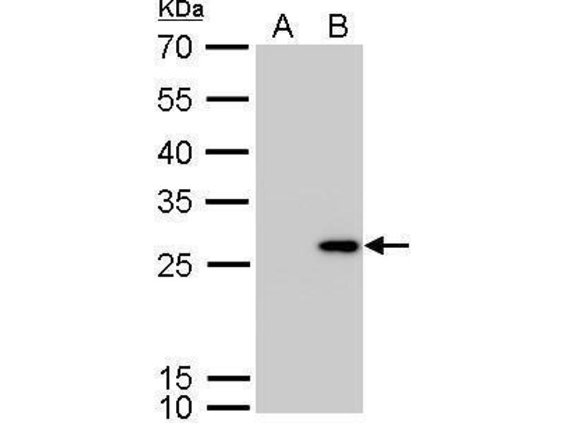 Western Blotting (WB) image for anti-Calbindin 2 (CALB2) (Center) antibody (ABIN2855596)