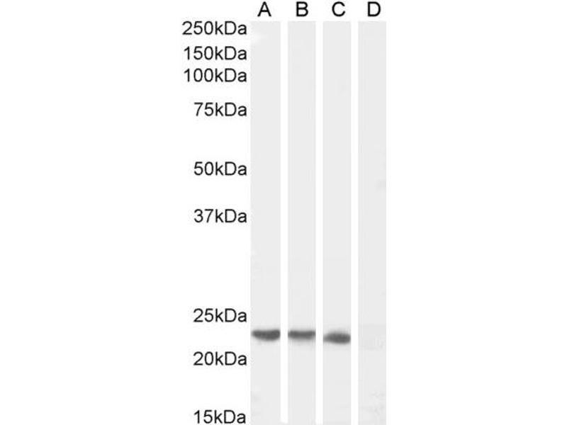 Western Blotting (WB) image for anti-Suppressor of Cytokine Signaling 1 (SOCS1) (C-Term) antibody (ABIN184575)
