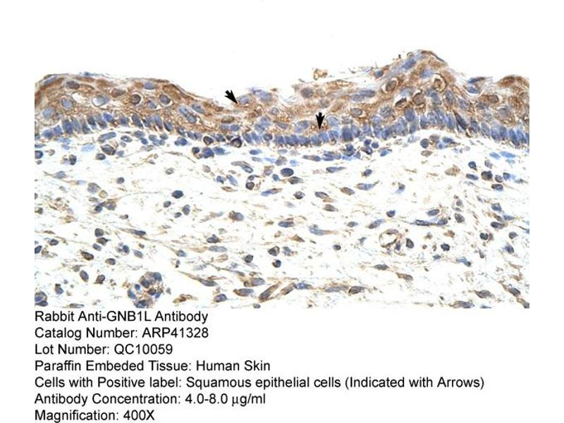 Immunohistochemistry (IHC) image for anti-Guanine Nucleotide Binding Protein (G Protein), beta Polypeptide 1-Like (GNB1L) (C-Term) antibody (ABIN184114)
