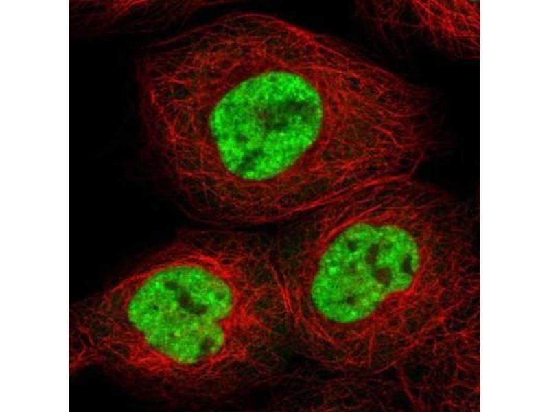 Immunofluorescence (IF) image for anti-RNA Binding Motif Protein 10 (RBM10) antibody (ABIN4349575)