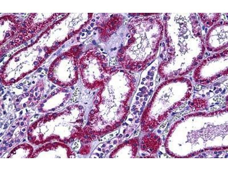 Image no. 1 for anti-Retinol Binding Protein 5, Cellular (RBP5) (AA 10-59) antibody (ABIN2878770)