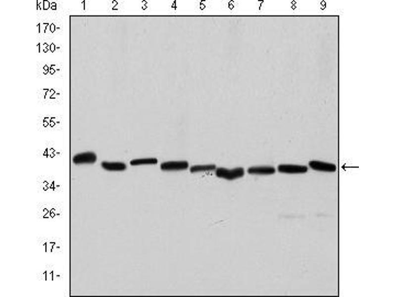 Western Blotting (WB) image for anti-Actin, alpha 2, Smooth Muscle, Aorta (ACTA2) antibody (ABIN968947)