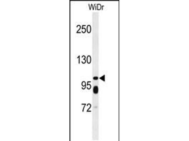 Image no. 1 for anti-ATP-Binding Cassette, Sub-Family C (CFTR/MRP), Member 11 (ABCC11) (AA 343-372), (N-Term) antibody (ABIN5534920)