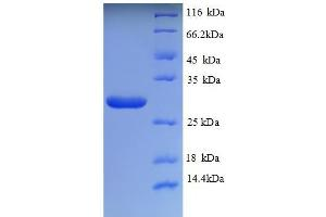 Image no. 1 for Trehalase (Brush-Border Membrane Glycoprotein) (TREH) (AA 3-221), (partial) protein (His tag) (ABIN5713138)