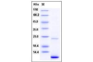 Image no. 1 for S100 Calcium Binding Protein A11 (S100A11) (AA 1-105) protein (ABIN2004007)
