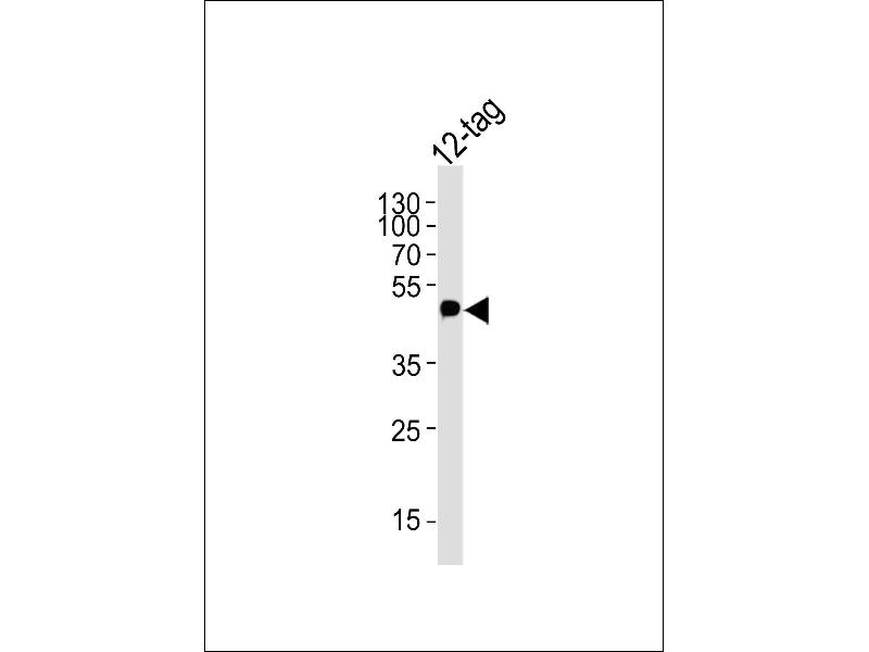 Western Blotting (WB) image for anti-Myc Tag antibody (ABIN387746)