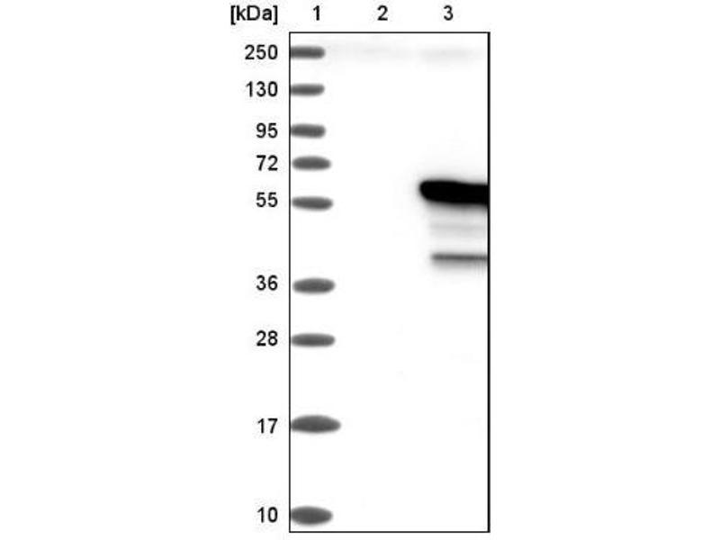 Western Blotting (WB) image for anti-IRF4 antibody (Interferon Regulatory Factor 4) (ABIN4327577)