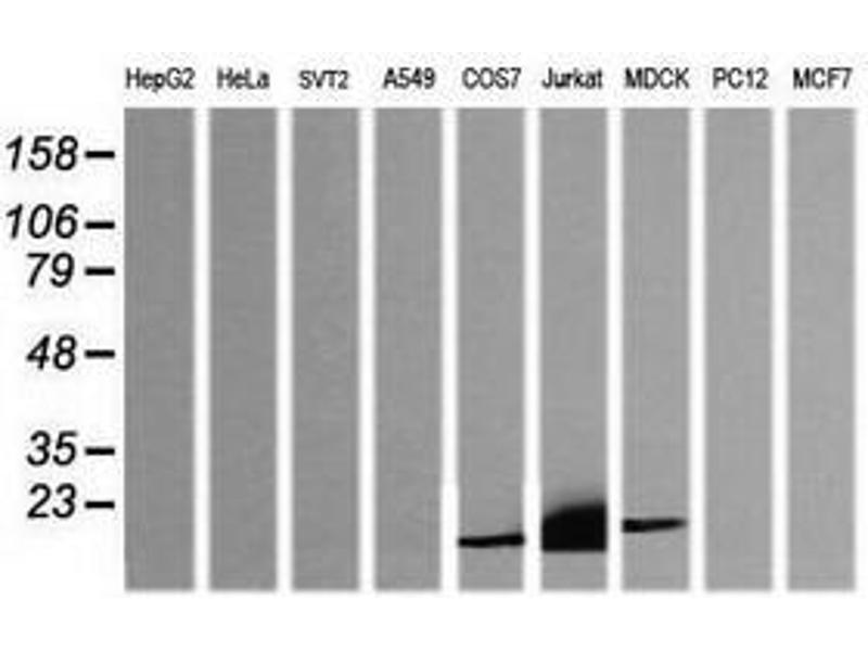 image for anti-CD3e Molecule, epsilon (CD3-TCR Complex) (CD3E) antibody (ABIN1497222)