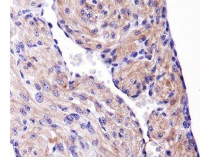 Immunohistochemistry (IHC) image for anti-Heat Shock 27kDa Protein 1 (HSPB1) (AA 80-150), (Internal Region) antibody (ABIN4319980)