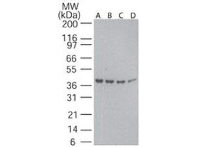 Image no. 1 for anti-Actin, beta (ACTB) antibody (ABIN4284408)