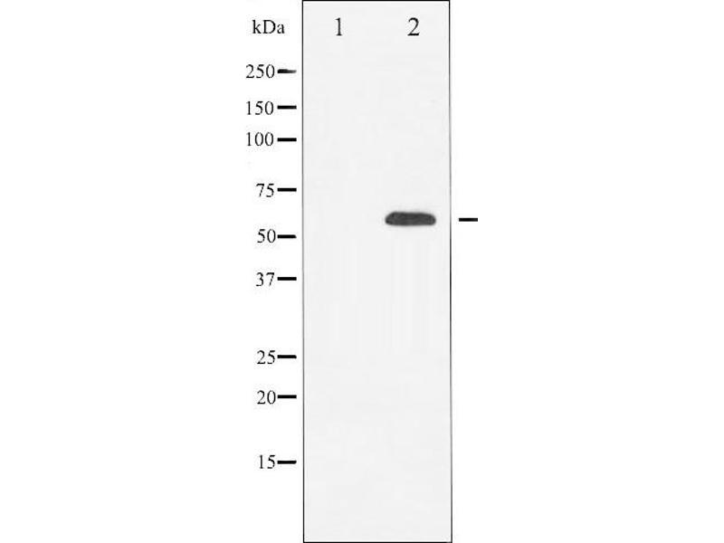 Image no. 1 for anti-Tubulin, beta (TUBB) antibody (ABIN6269435)