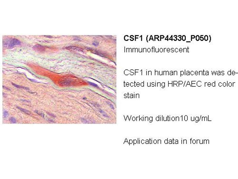 image for anti-CSF1 antibody (Colony Stimulating Factor 1 (Macrophage)) (Middle Region) (ABIN2781823)