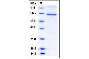 Image no. 1 for Death-Associated Protein Kinase 1 (DAPK1) (AA 1-363), (N-Term) (Active) protein (GST tag,His tag) (ABIN2004930)