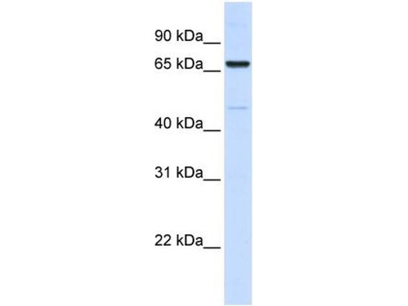 Western Blotting (WB) image for anti-Acyl-CoA Synthetase Long-Chain Family Member 5 (ACSL5) (C-Term) antibody (ABIN2782881)