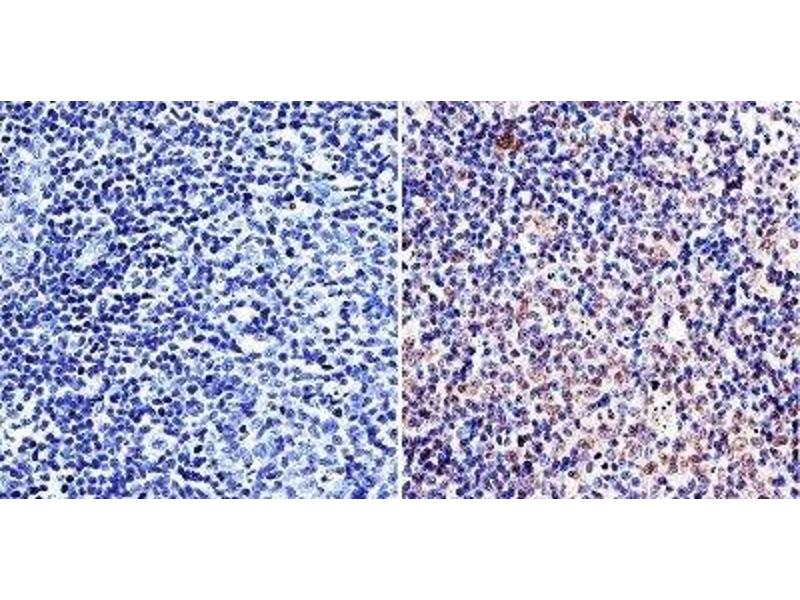 Immunohistochemistry (Paraffin-embedded Sections) (IHC (p)) image for anti-TNF Receptor-Associated Factor 3 (TRAF3) antibody (ABIN266928)