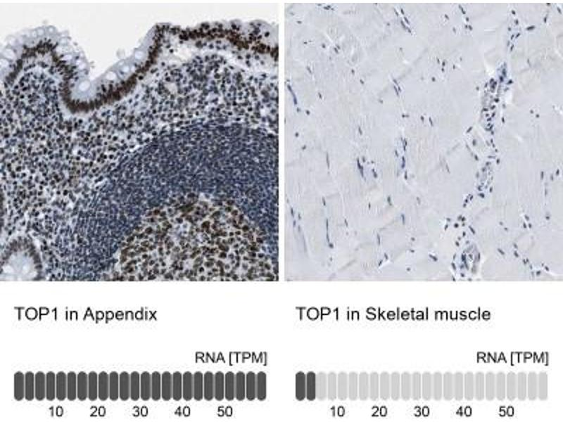 Immunohistochemistry (Paraffin-embedded Sections) (IHC (p)) image for anti-Topoisomerase (DNA) I (TOP1) antibody (ABIN4361380)