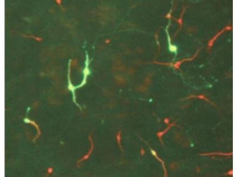 Immunofluorescence (IF) image for anti-tyrosine Hydroxylase (TH) antibody (ABIN152458)