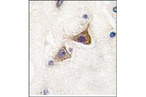 Image no. 2 for anti-Junctophilin 3 (JPH3) (Middle Region) antibody (ABIN357848)