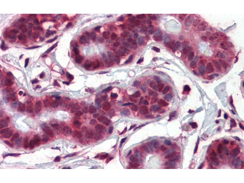 Immunohistochemistry (IHC) image for anti-Notch 4 (NOTCH4) (Middle Region) antibody (ABIN2777550)