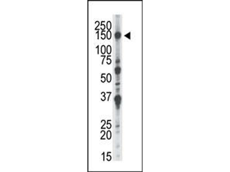 image for anti-NEK1 antibody (NIMA-Related Kinase 1) (AA 1173-1202) (ABIN360536)