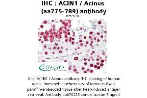 Image no. 2 for anti-Apoptotic Chromatin Condensation Inducer 1 (ACIN1) (AA 775-789) antibody (ABIN1731450)