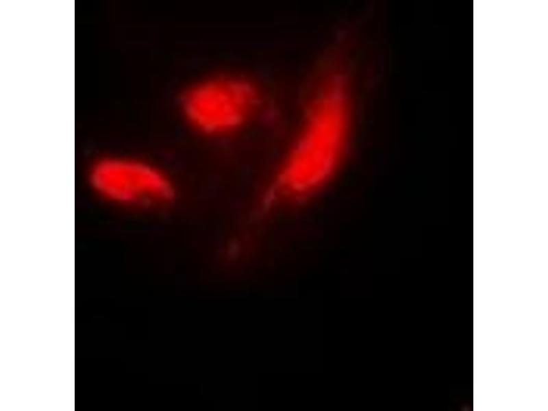 Immunofluorescence (IF) image for anti-Interferon Regulatory Factor 3 (IRF3) (C-Term), (pSer385) antibody (ABIN2957643)