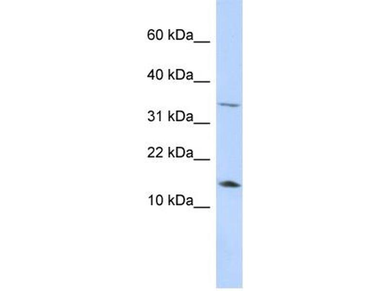 Western Blotting (WB) image for anti-Leptin (LEP) (Middle Region) antibody (ABIN2776944)