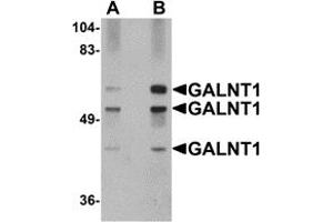 Image no. 1 for anti-UDP-N-Acetyl-alpha-D-Galactosamine:polypeptide N-Acetylgalactosaminyltransferase 10 (GalNAc-T10) (GALNT10) (N-Term) antibody (ABIN1031390)