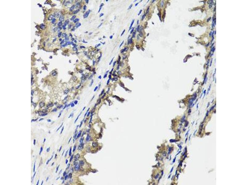 Image no. 1 for anti-Ornithine Carbamoyltransferase (OTC) antibody (ABIN6572037)