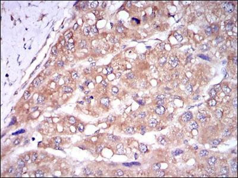 Immunohistochemistry (IHC) image for anti-Caspase 8 antibody (Caspase 8, Apoptosis-Related Cysteine Peptidase) (ABIN969003)