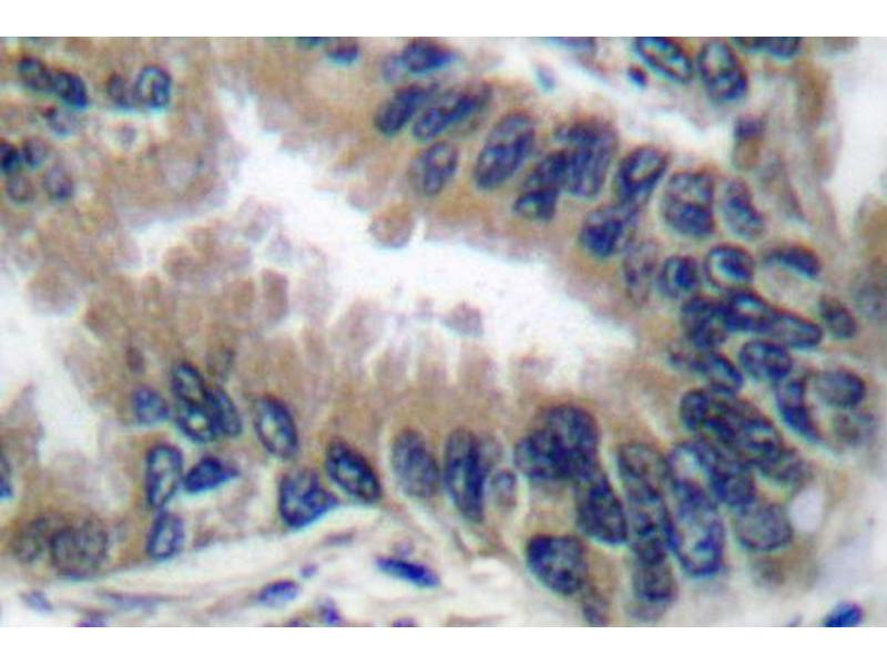 image for anti-Apoptotic Peptidase Activating Factor 1 (APAF1) antibody (ABIN265312)