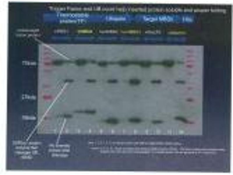 image for anti-His Tag antibody (ABIN1042604)