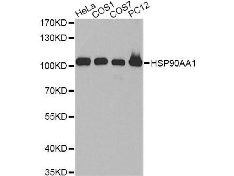 Image no. 1 for anti-Heat Shock Protein 90kDa alpha (Cytosolic), Class A Member 2 (HSP90AA2) antibody (ABIN6568009)