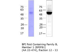 Image no. 1 for BPI Fold Containing Family B, Member 1 (BPIFB1) (AA 22-474) protein (His tag) (ABIN3122859)