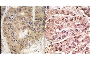 image for anti-SUMO4 antibody (SMT3 Suppressor of Mif Two 3 Homolog 4 (S. Cerevisiae)) (Met55Val-Mutant) (ABIN356787)