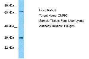 Image no. 1 for anti-Zinc Finger Protein 90 (ZNF90) (C-Term) antibody (ABIN2792041)