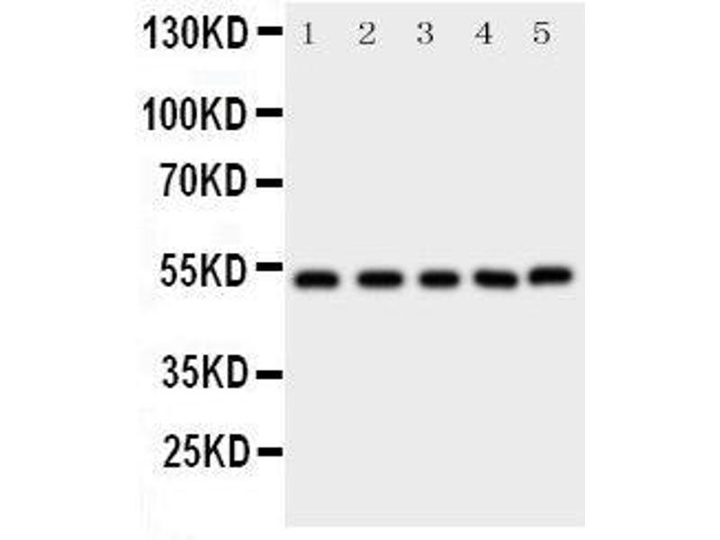 Western Blotting (WB) image for anti-SMAD, Mothers Against DPP Homolog 5 (SMAD5) (AA 248-267), (Middle Region) antibody (ABIN3043980)