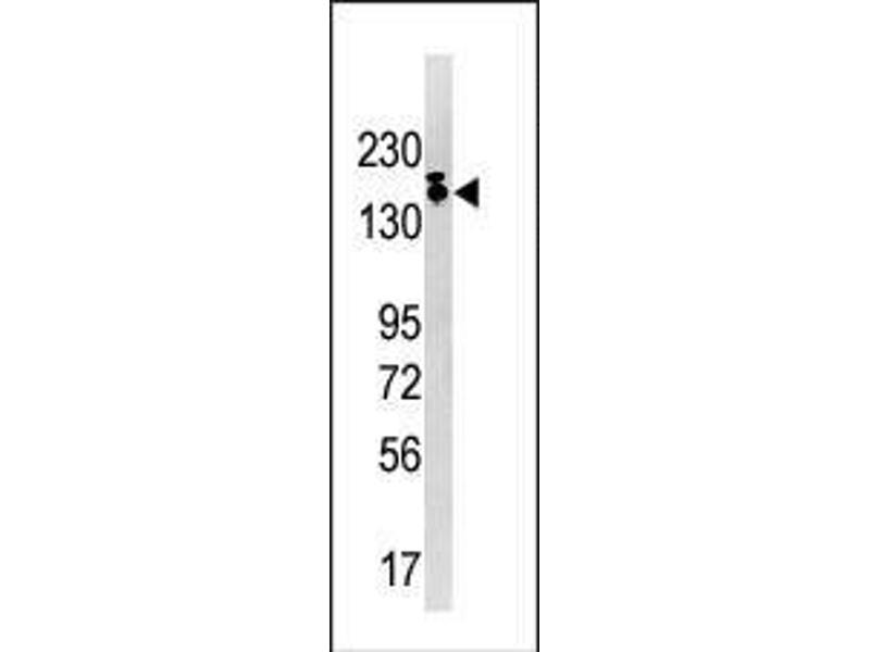 Western Blotting (WB) image for anti-SETDB1 antibody (SET Domain, Bifurcated 1) (AA 1193-1225) (ABIN387924)
