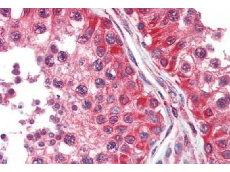 Image no. 2 for anti-Dihydropyrimidinase-Like 2 (DPYSL2) (AA 463-492) antibody (ABIN462302)