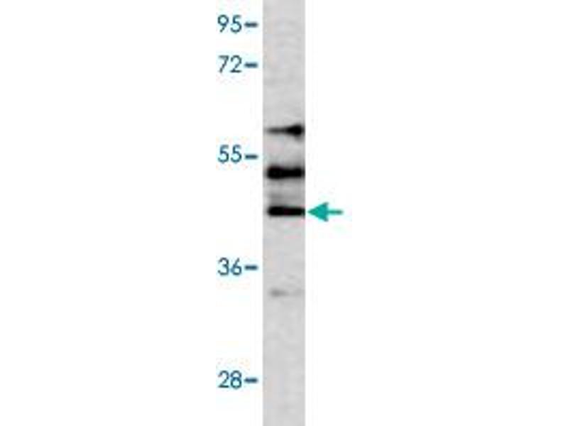 Western Blotting (WB) image for anti-serine/threonine Kinase 3 (STK3) antibody (ABIN543259)