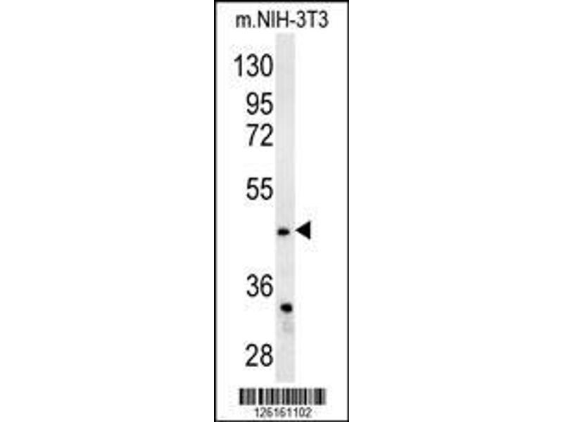 Western Blotting (WB) image for anti-Fatty Acid Desaturase 2 (FADS2) (AA 96-122), (Center) antibody (ABIN651561)