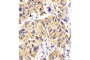 Immunohistochemistry (Paraffin-embedded Sections) (IHC (p)) image for anti-Platelet-Derived Growth Factor Receptor, alpha Polypeptide (PDGFRA) (AA 698-727), (Tyr720) antibody (ABIN392024)
