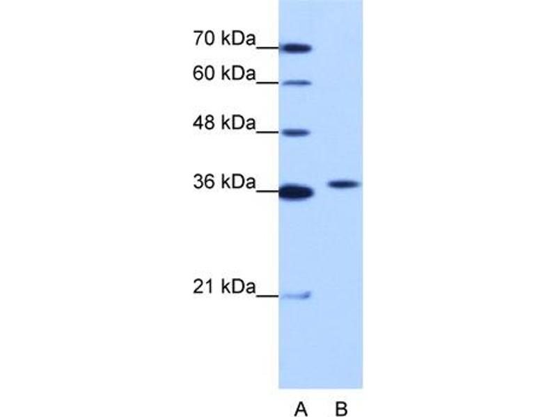 Western Blotting (WB) image for anti-Exosome Component 7 (EXOSC7) (N-Term) antibody (ABIN184033)
