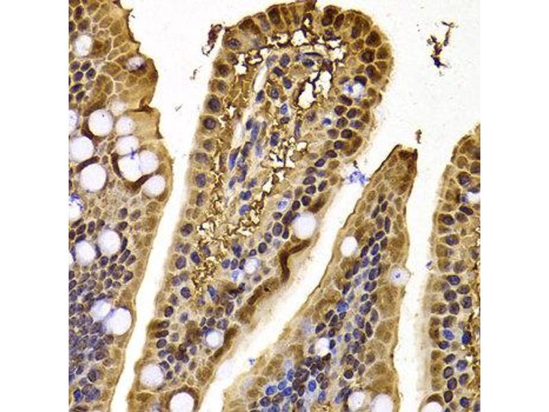 Immunohistochemistry (IHC) image for anti-Exportin 5 (XPO5) antibody (ABIN2560799)