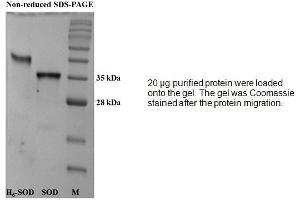 Image no. 2 for Superoxide Dismutase 1, Soluble (SOD1) (Active) protein (ABIN413796)