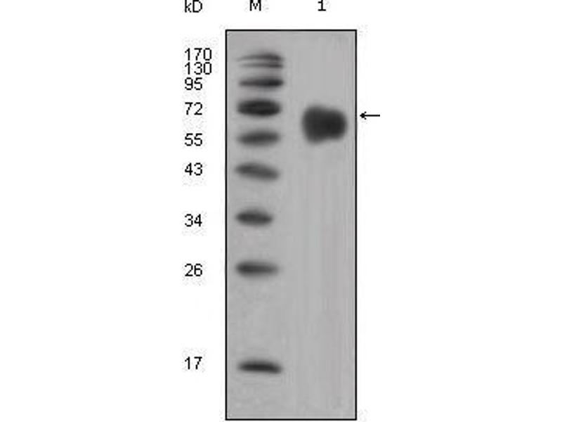 Western Blotting (WB) image for anti-FGFR4 Antikörper (Fibroblast Growth Factor Receptor 4) (ABIN969140)